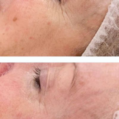 skinbase microdermabrasion facial treatment before and after picture Nataya Beauty Manchester City centre